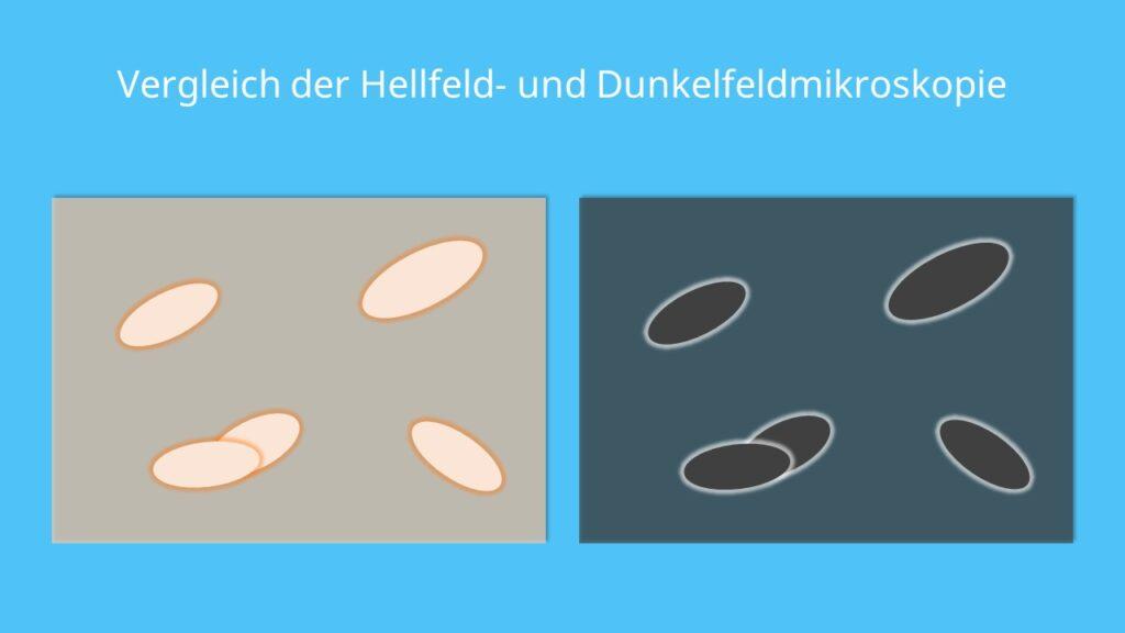 Vergleich der Hellfeld- und Dunkelfeldmikroskopie, Mikroskop, Hellfeld, Dunkelfeld, Kontrast, Mikroskopie, Auflichtmikroskop, Durchlichtmikroskop