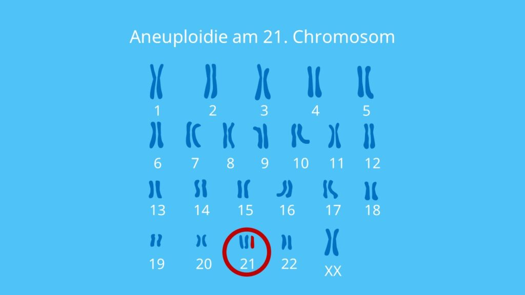 Aneuploidie am 21. Chromosom, Trisomie 21, Down Syndrom, Aneuploidie, Genommutation, Chromosomenaberration, Chromosom, Karyogramm