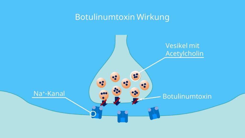 Botox, Vesikelfusion, Neurotransmitter, präsynaptische Membran