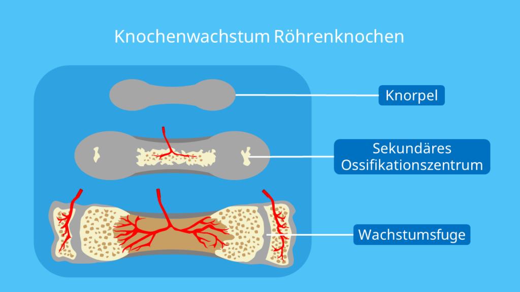 Knochenwachstum, markhöhle, Epiphysenfuge, Wachstumsfuge, Spongiosa