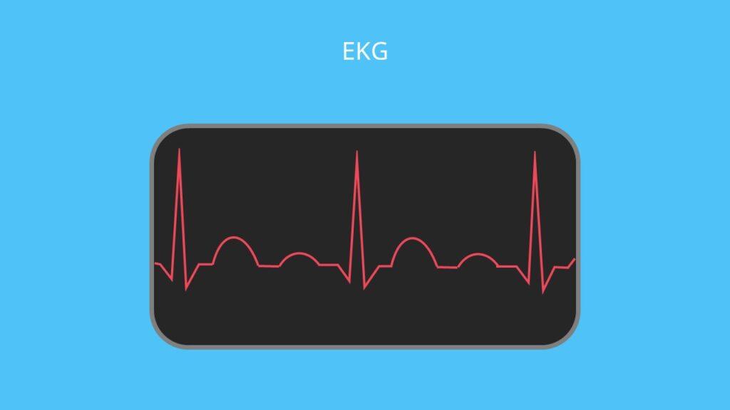 Herz Funktion, Herzmuskel, EKG